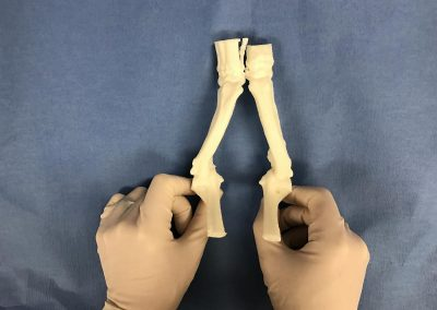 Angular Limb Deformities